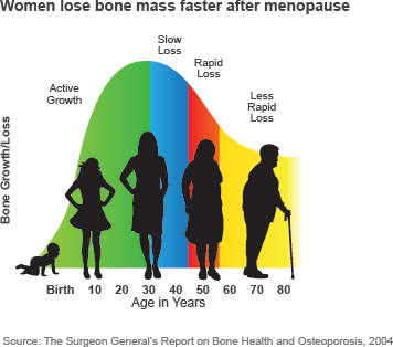 Women lose bone mass faster after menopause
